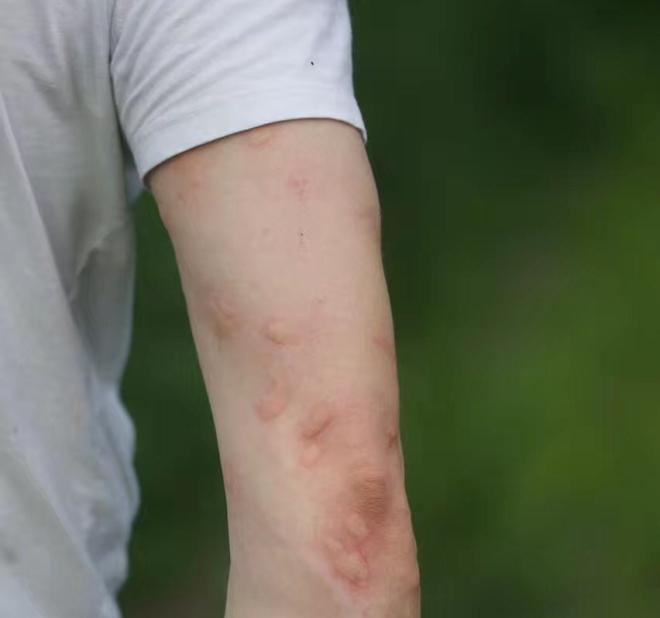 TT insect bites, shunyi